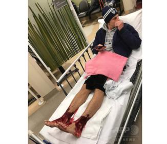 オーストラリアで海に入った少年の足が血だらけ 無数の小さな穴が開く